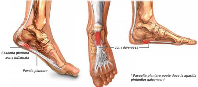 Cauze aparitie artrita